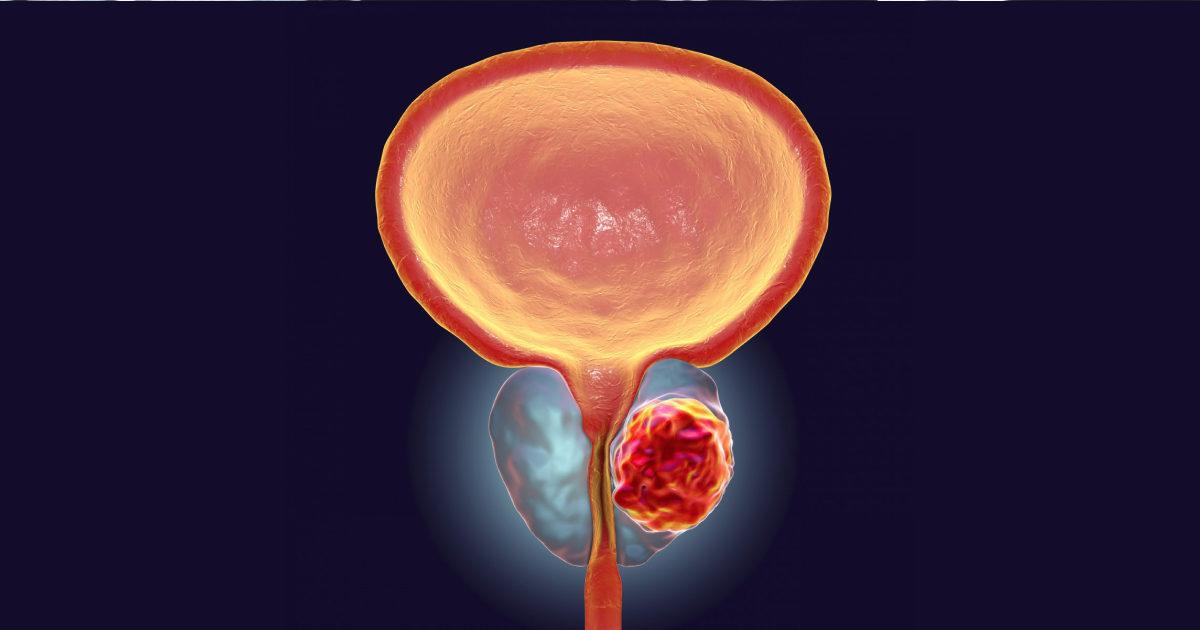 Диагностика рада предстательной железы