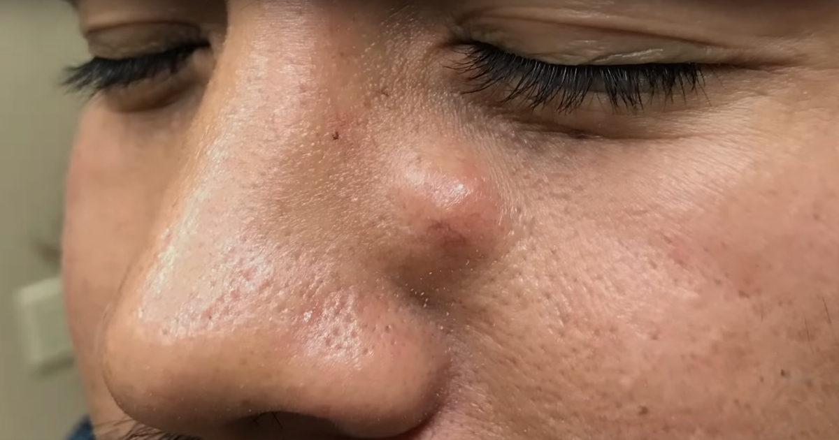 Киста в пазухе носа: как обнаружить и что делать?