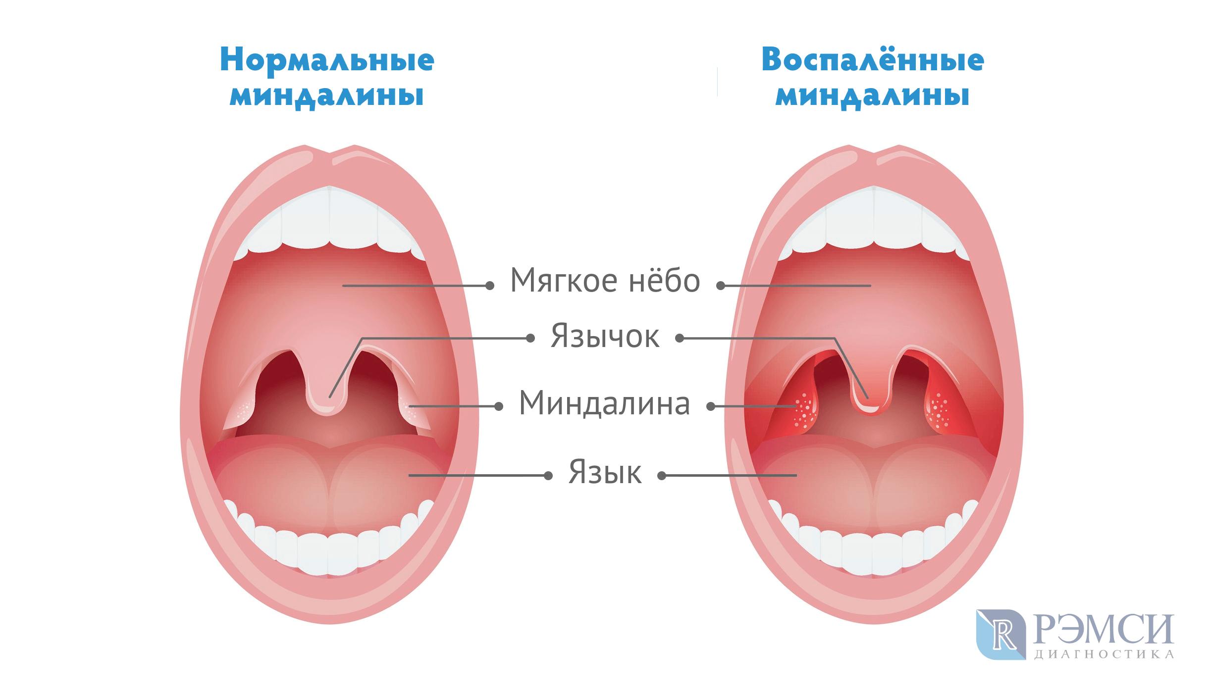 Схема горла в здоровом состоянии во время ангины