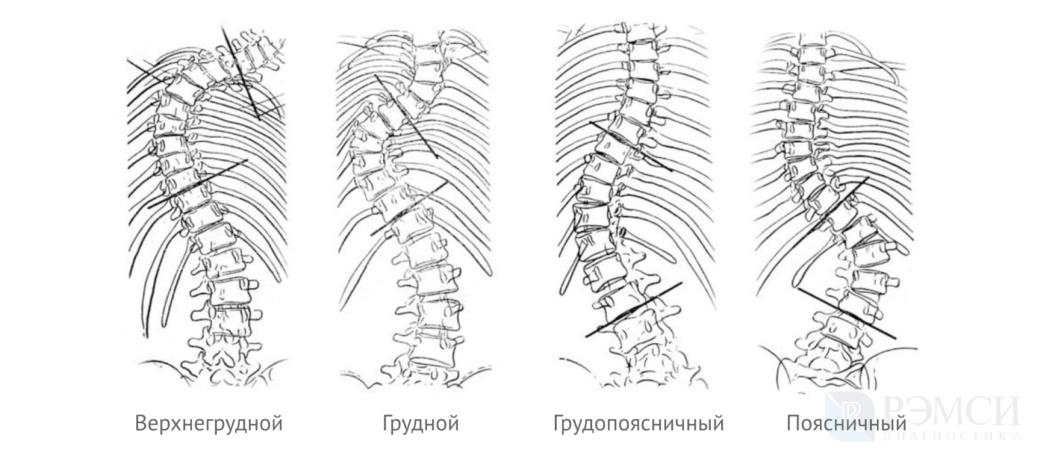 Искривление грудного отдела позвоночника: виды сколиоза