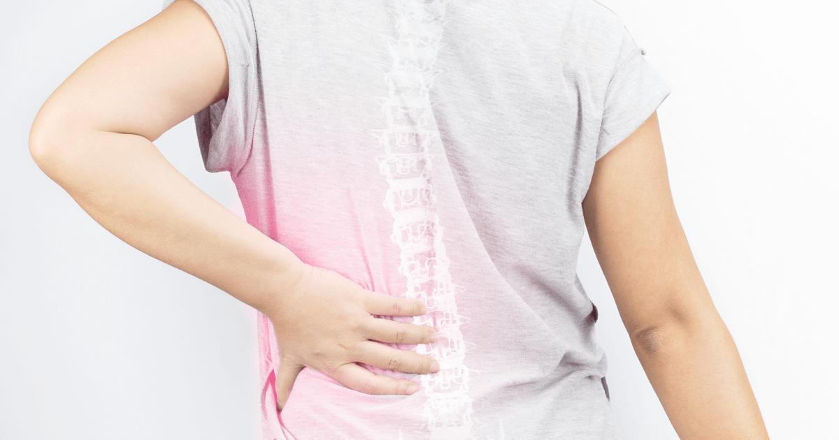 Искривление грудного отдела позвоночника: сколиоз