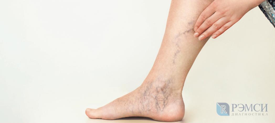 Чек-ап для женщин: вариконзное расширение вен и другие заболевания