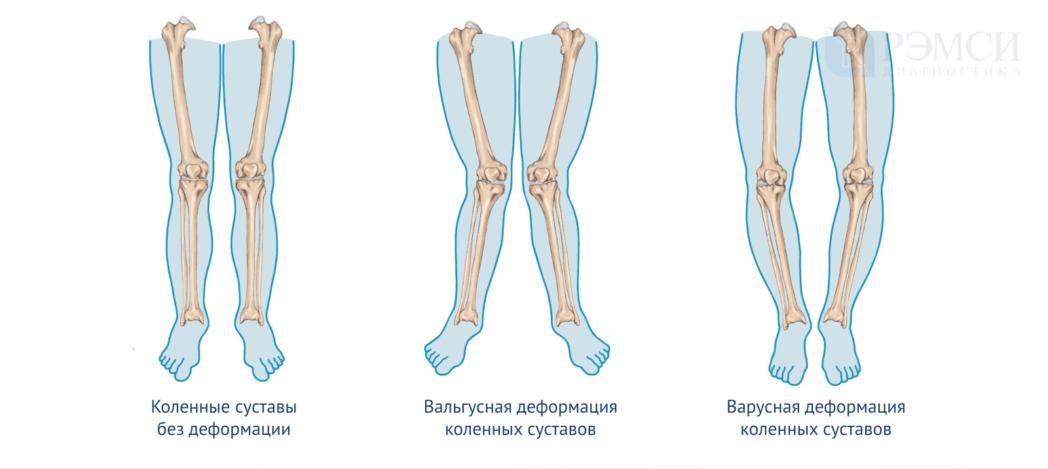 Как выпрямить сустав в колене thumbnail
