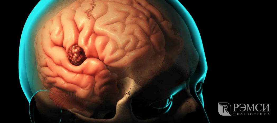 Уже первые признаки опухоли головного мозга показывают, как негативно она влияет на мозг