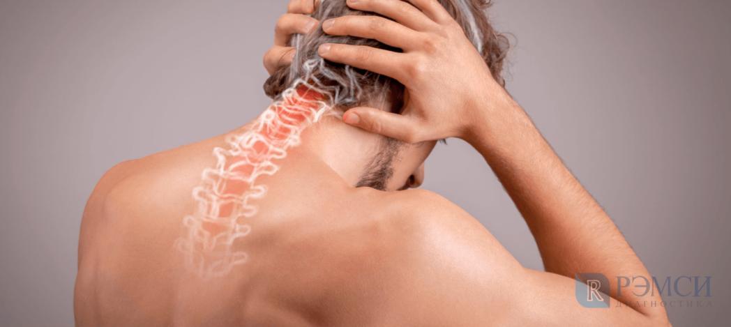 Почему болит затылок: причины в позвоночнике