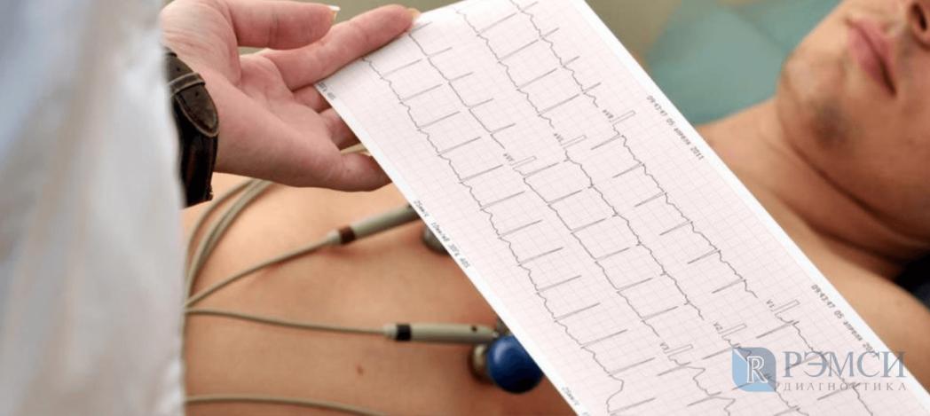 При подозрении на боль в сердце, делают ЭКГ и другие обследования