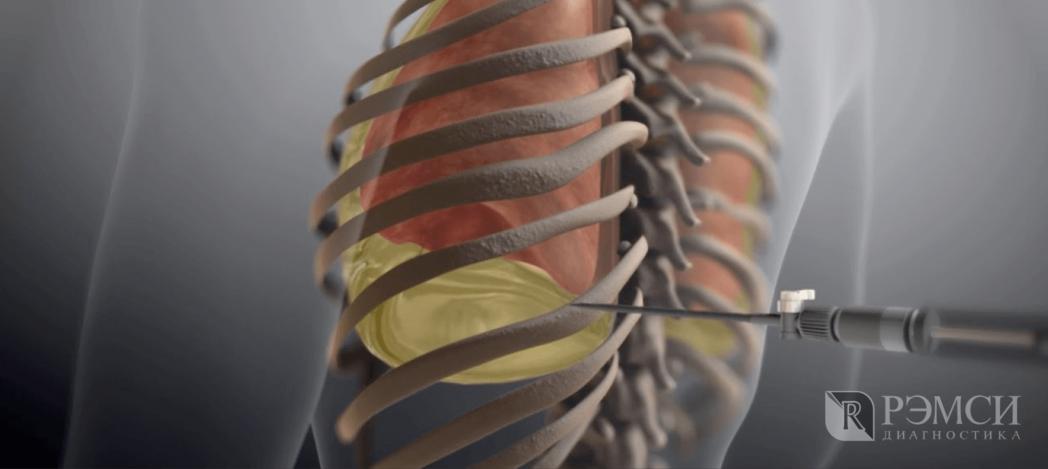 Исследование органов грудной клетки: плевральная пункция