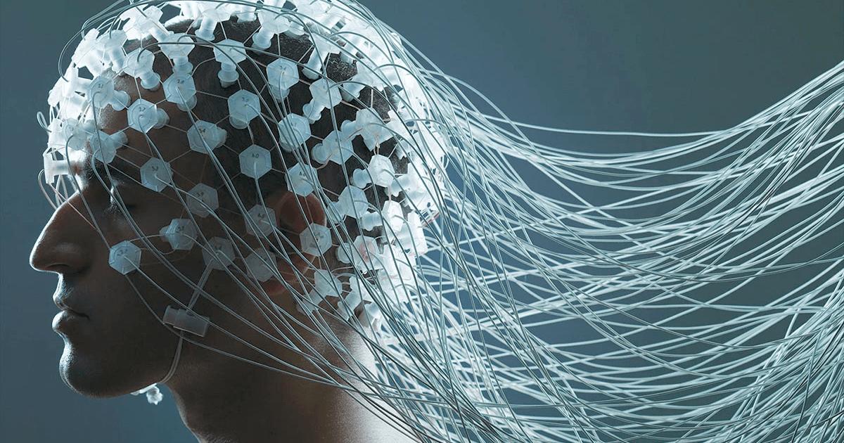 Как проходит исследование головного мозга