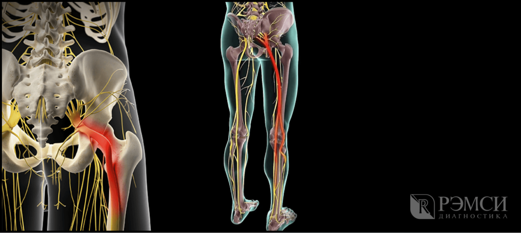 Защемление седалищного нерва: симптомы