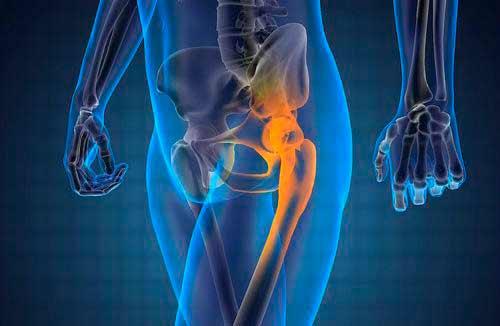 нарушение и заболевания суставов